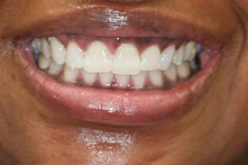 East Valley Dental Care is the best place to get a teeth whitening in Mesa